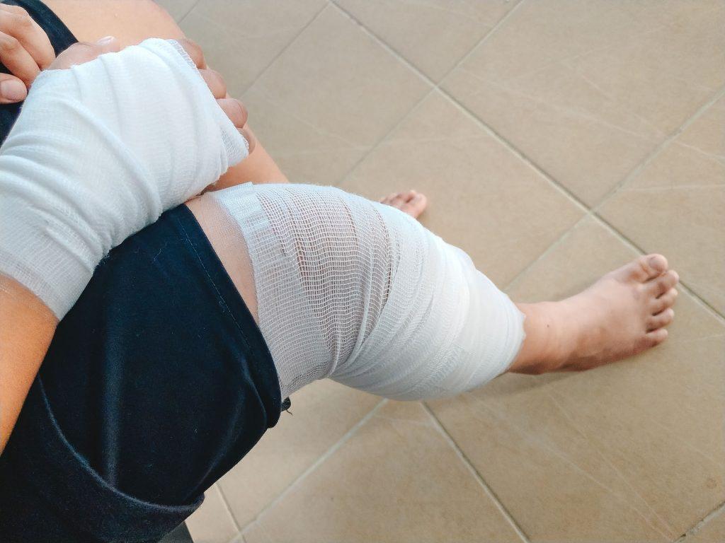 Ormond Beach, FL personal injury lawyer